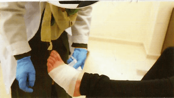 Conducting the care and dressing of diabetic foot